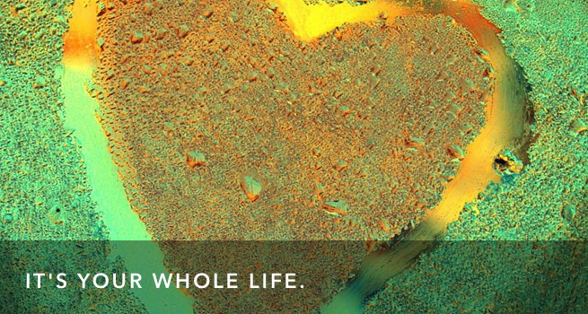 What is Living Wholehearted?